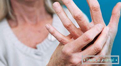 a kezelés kezdeti szakaszában a kezek ízületi gyulladása)