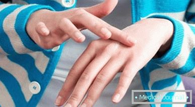 vörös foltokkal és kéregekkel borított kezek