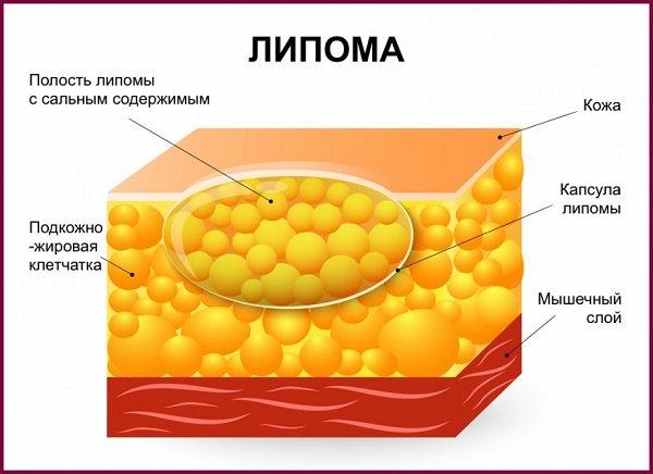 hipertónia 1 fokos veszélyes