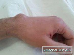 unalmas fájdalom a kéz lábainak ízületeiben