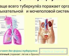 súlycsökkenés a tuberkulózis után)