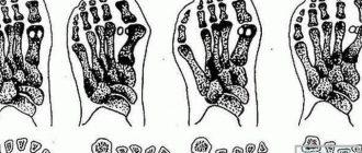 a térd deformáló artrózisa 3-4 fok