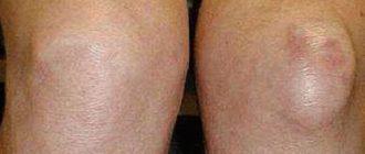 a térdízület első fokú deformáló artrózisa)